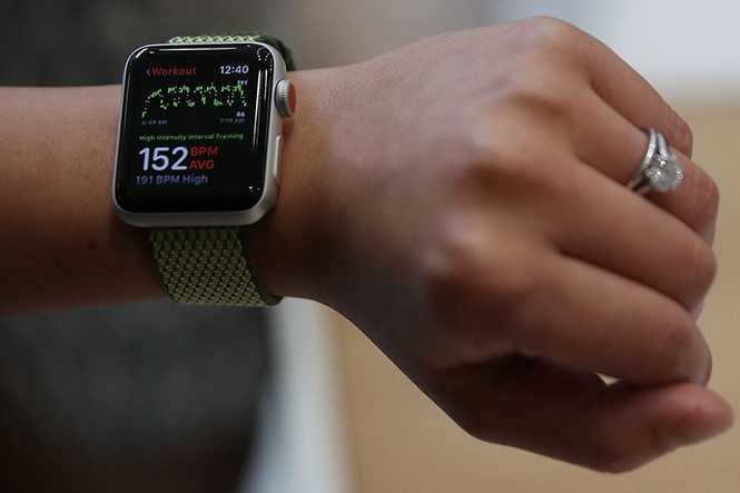 """""""Onre more thing"""" của Tim Cook - Apple Watch"""